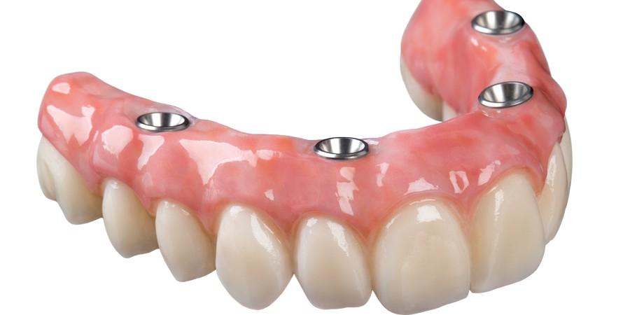 варианты имплантов зубов
